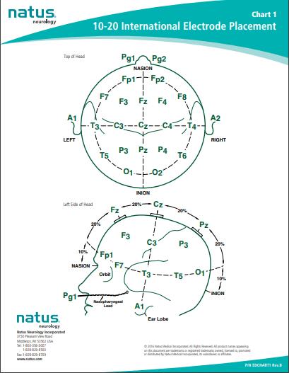10-20 International Electrode Placement Chart